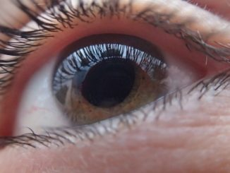 NHS commissioners ignoring guidelines by rationing cataract surgery