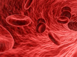 Sepsis digital alert shown to be clinically promising