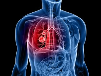 RCGP defends GPs on lung cancer diagnosis