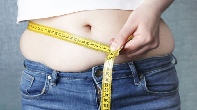 Support: the solution to obesity